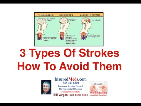 3 Types Of Strokes And How To Avoid Them
