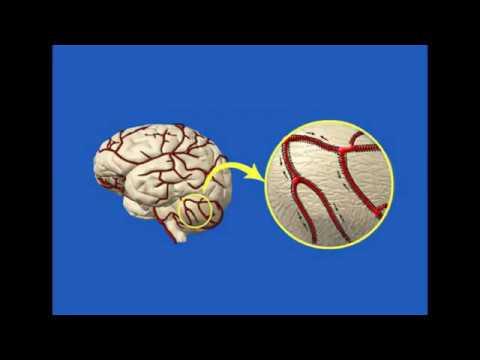 Травы для расширения сосудов головного мозга (список и