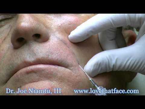 Nasolabial Fold Filler with Cannula by Dr. Joe Niamtu