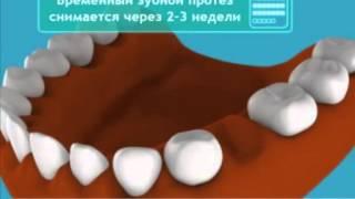 видео Мостовидные протезы