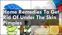 hqdefault - Natural Remedies For Under The Skin Pimples