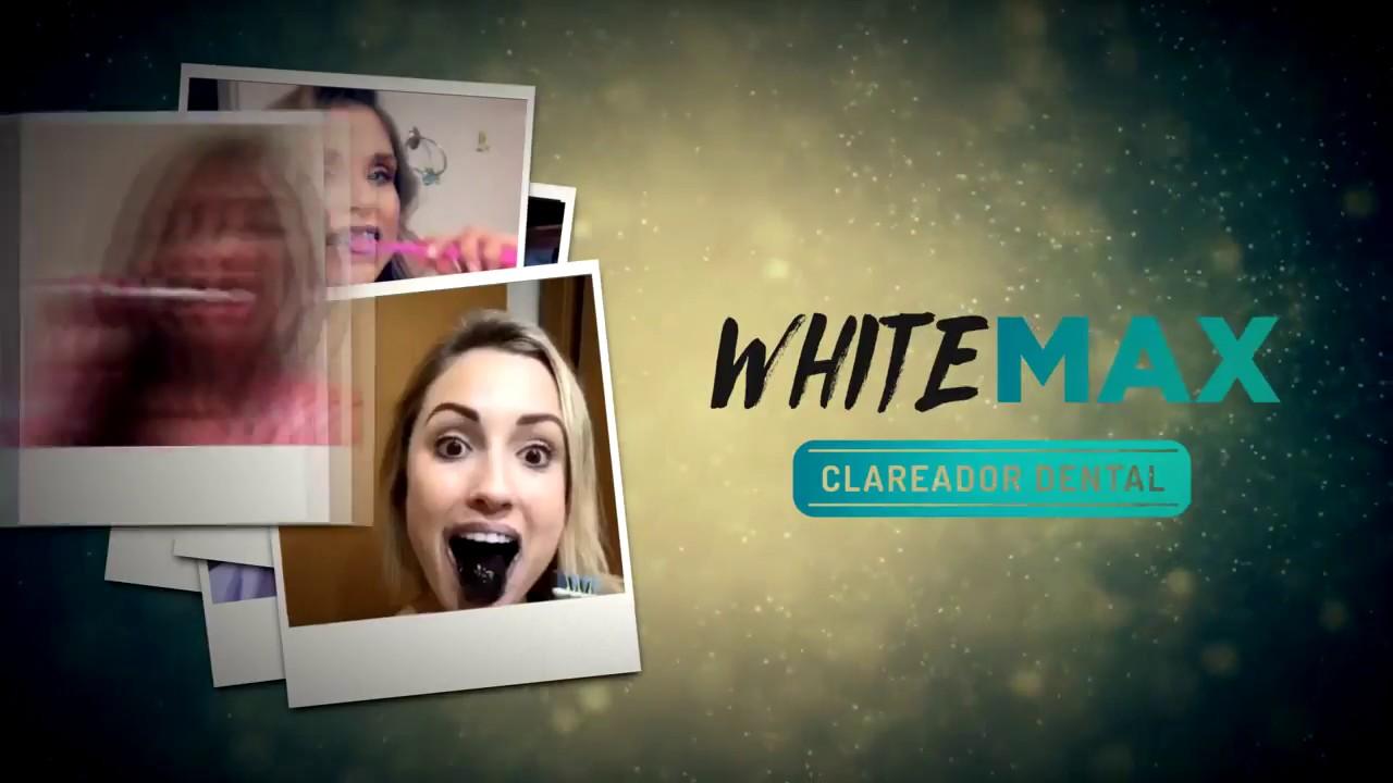 Whitemax Funciona Mesmo Cantora Kelly Key Conta Toda A Verdade