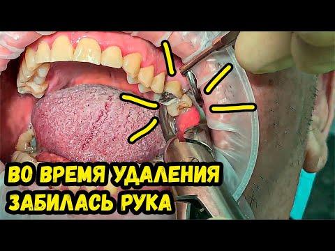 Удаление зуба мудрости (Выпуск 10) / Tooth Extraction