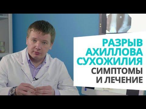 Разрыв ахиллова сухожилия: симптомы и лечение доктор Алексей Олейник #footclinic