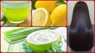 Dandruff treatment at Home with ALOE VERA  % Cure For Dandruff &amp Hair Fall
