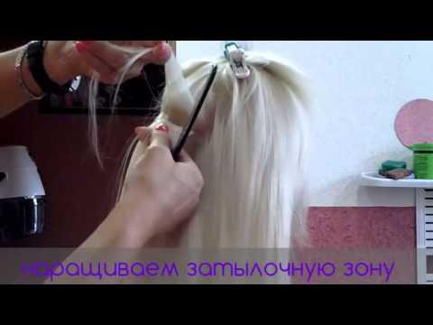Система замещения волос у мужчин