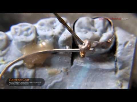 Como soldar aparatos de ortodoncia de manera optima.