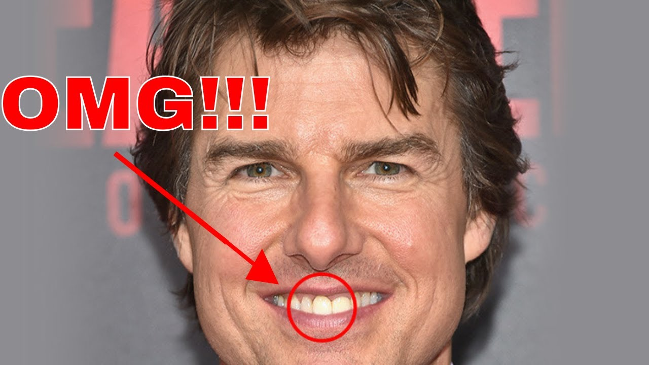 Did You Know Look At Tom Cruise Teeth 10 Facts