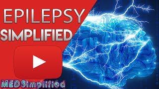 Penyakit Epilepsi: Obat Epilepsi dan Pengobatan Epilepsi LENGKAP - dr. Desin Pambudi Sejahtera.