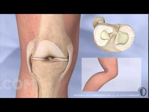 Understand.com | New Torn Meniscus Repair Procedure - Highlight Reel