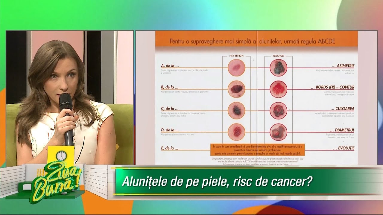 etichetă de tip tapeworm hpv can cause what cancer