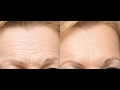 Smooth Out Forehead Wrinkles with Simple Face Massage