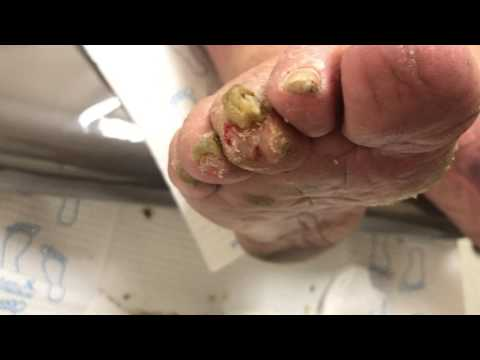 Foot Callus and Nail Cutting 3rd Toe osteomyelitis (Bone Infection)