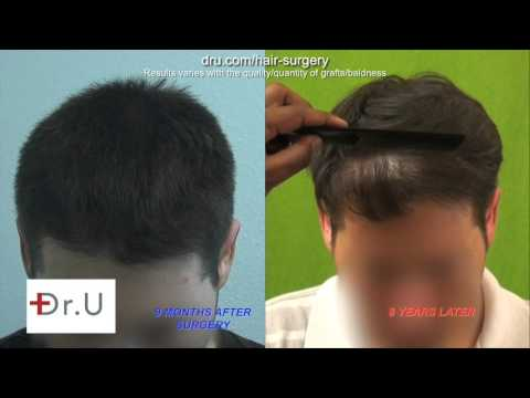 Progressive Hair Loss and Advanced UGraft FUE Hair Transplant In Los Angeles