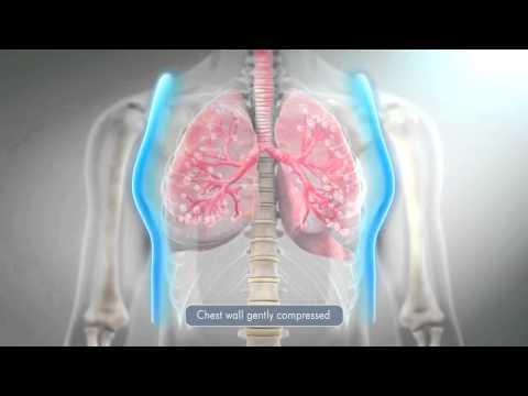Дренаж лёгких (постуральный дренаж).. Авторская методика!
