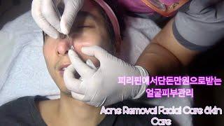 필리핀에서 단돈 만원으로 받는 얼굴관리 I got a Facial Care.