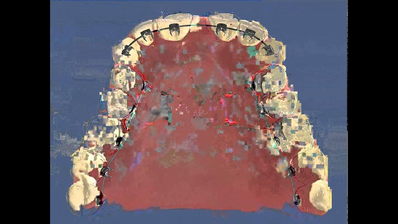 Схема подстановки формы анна сидоренко фото 804