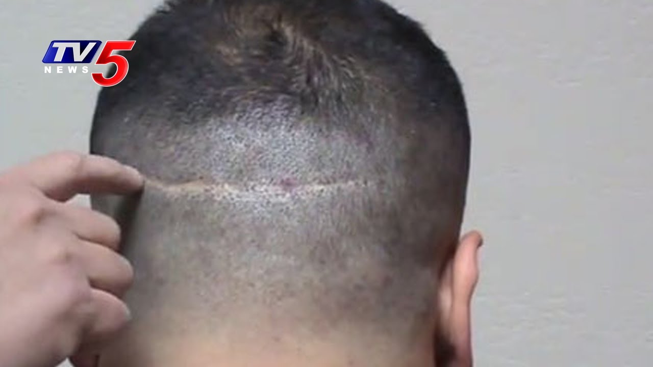 Hair transplant problems pictures