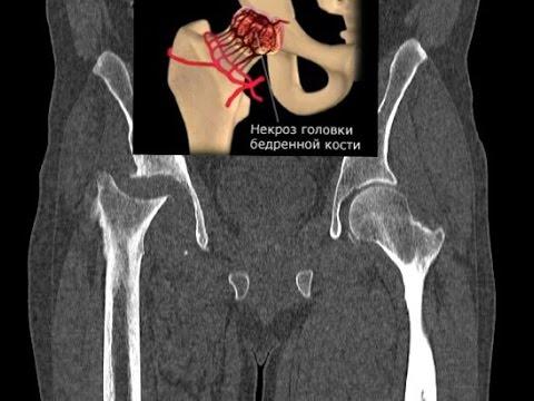 Асептический некроз головки бедренной кости - инфаркт