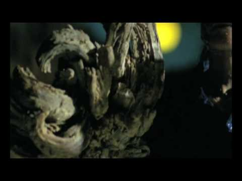 My Shocking Story: Treeman the Cure - Medical History