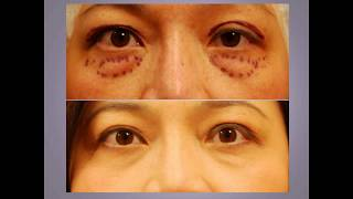 Ptosis Droopy Eyelid Surgery