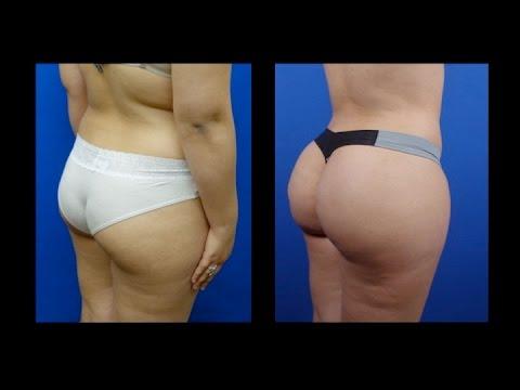Butt Augmentation  with Fat Transfer, by Dr. Hourglass, Houston, Dallas, Austin, San Antonio