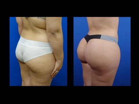 Butt Augmentation  with Fat Transfer, by Dr. Hourglass, Houston, Dallas, Austin, San Antonio
