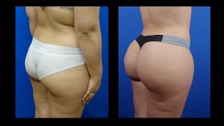 Butt Augmentation Fat Transfer Dr Hourgl Houston Dallas Austin San Antonio