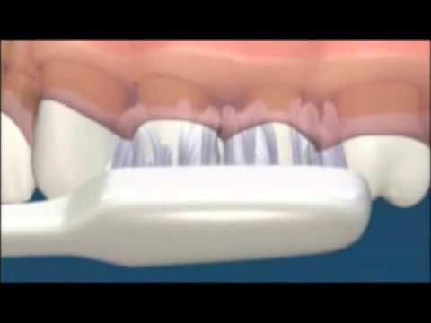 การดูแลสุขภาพช่องปากโดยการแปลงฟัน