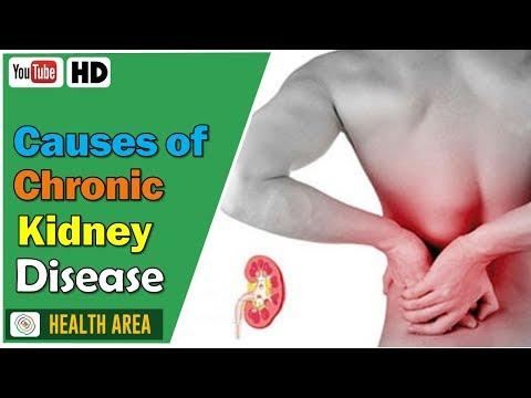 6-causes-of-chronic-kidney-disease