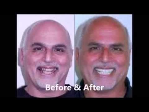 Dental Implants in San Diego- Dental Implants in San Diego California!
