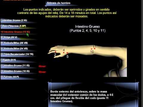 Остеоартроз — Википедия