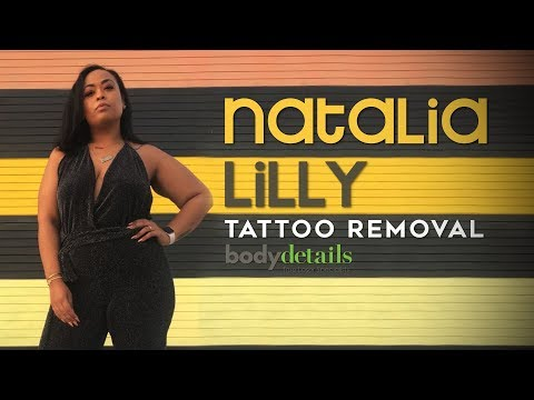 Tattoo Removal Before & After | Natalia Lilly | Body Details