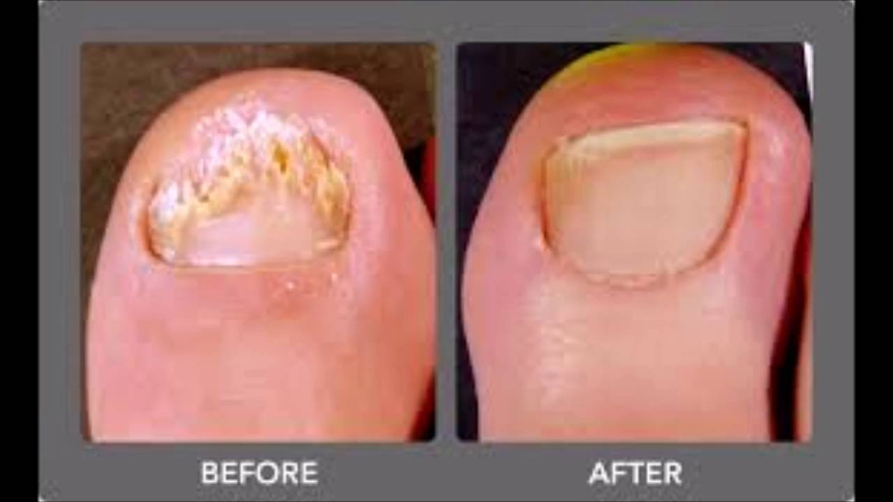 nail fungus treatment cvs