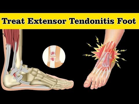 How to Treat Extensor Tendonitis Foot || Extensor Tendonitis Foot Treatment