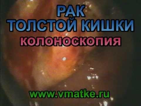 Подключичная артерия — строение, стеноз, лечение