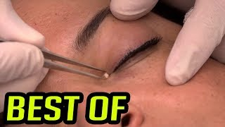Worst Eye Cysts, Pimples, Staph Infections & Comedones