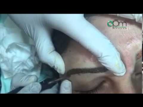 Permanent Makeup Color Correction and Eyebrows