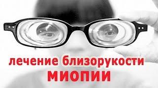 ★Методы улучшения зрения при близорукости (миопии). Хирургическая коррекция.