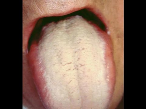 How To Get Rid Of White Coated Tongue Treatment Youtube