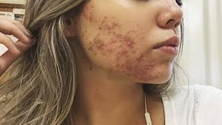 Tópico anti-inflamatório acne creme