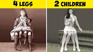 20 People You Won't Believe Existed Till You See Them