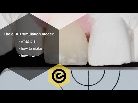 The eLAB Simulation Model for dental shade matching: What it is, how to make one and how it works!