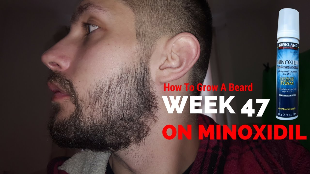 Minoxidil facial hair growth
