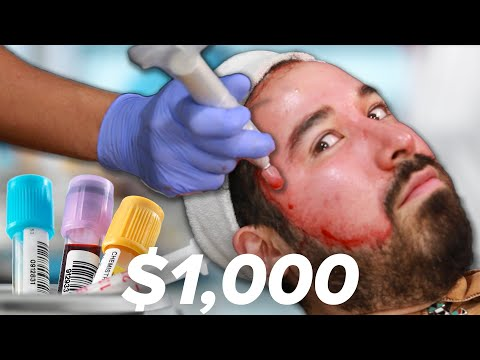 I Got A $1,000 Blood Facial