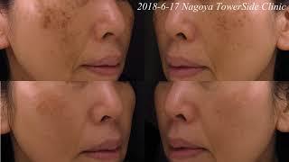 抗加齢治療2年の経過 (シミ) Anti-aging treatment; time-lapse photo (24M) thumbnail