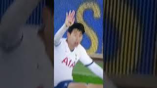 Andre Gomes horror leg break