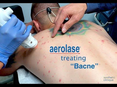 "Aerolase Back Acne Treatment ""Bacne"""