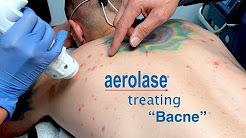 hqdefault - Laser For Back Acne