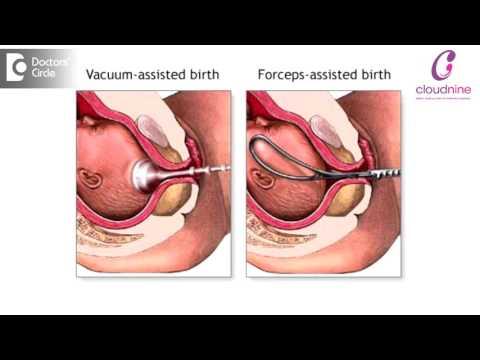 Managing Foetal Distress During Induced Labour Dr. Padmini Isaac | Cloudnine Hospitals